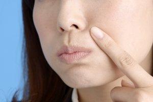 肌荒れ、かぶれ、湿疹の口コミ